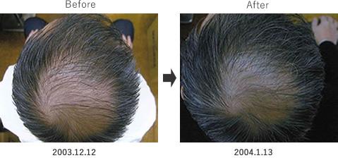 毛髪の再生・成長を促進